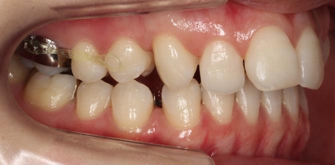カリエール頃終了頃の歯側面図